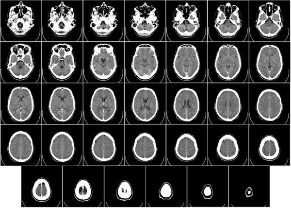 Ile kosztuje prywatne badanie tomografem?