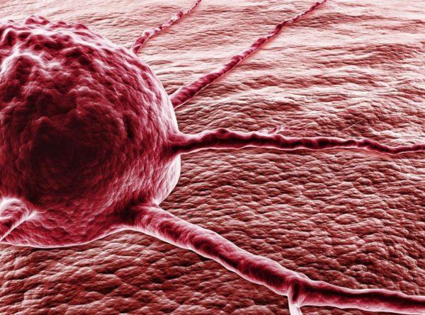 Skuteczne leczenie raka – to możliwe!